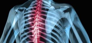 Behandlungsgrund_Wirbelsäulen-MRT