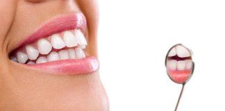 Zahnaufhellung mit Bleaching für ein strahlend weißes Lächeln beim Zahnarzt