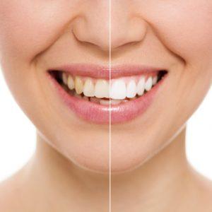 Zahnaufhellung beim Zahnarzt mit Bleaching