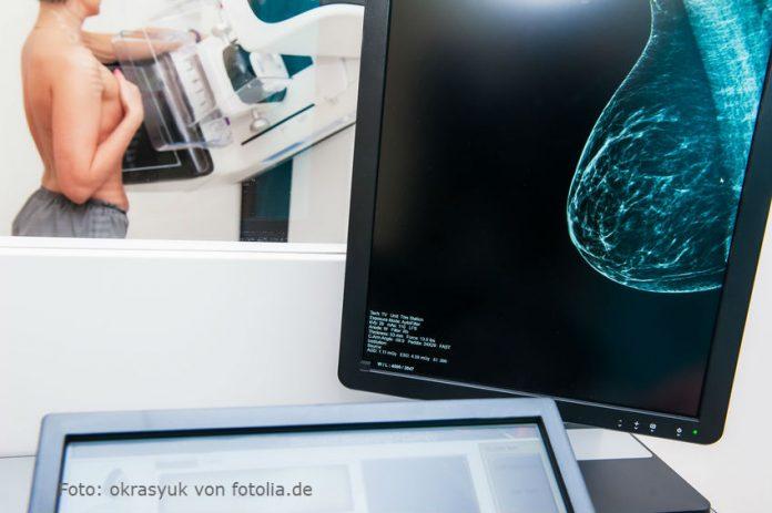 Brustkrebs was Sie wissen sollten