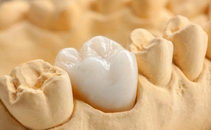 Implantat als Zahnersatz