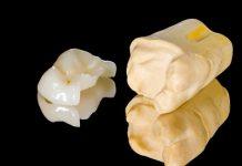 Prothetik Zahnersatz