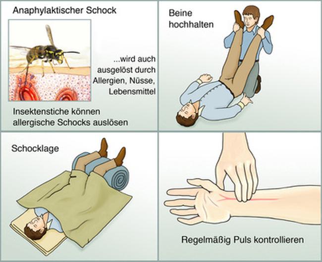 anaphylaktischer schock schnell reagieren arzttermine de magazin