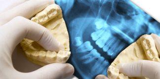 Oralchirurgische Eingriff bei Weisheitszähnen
